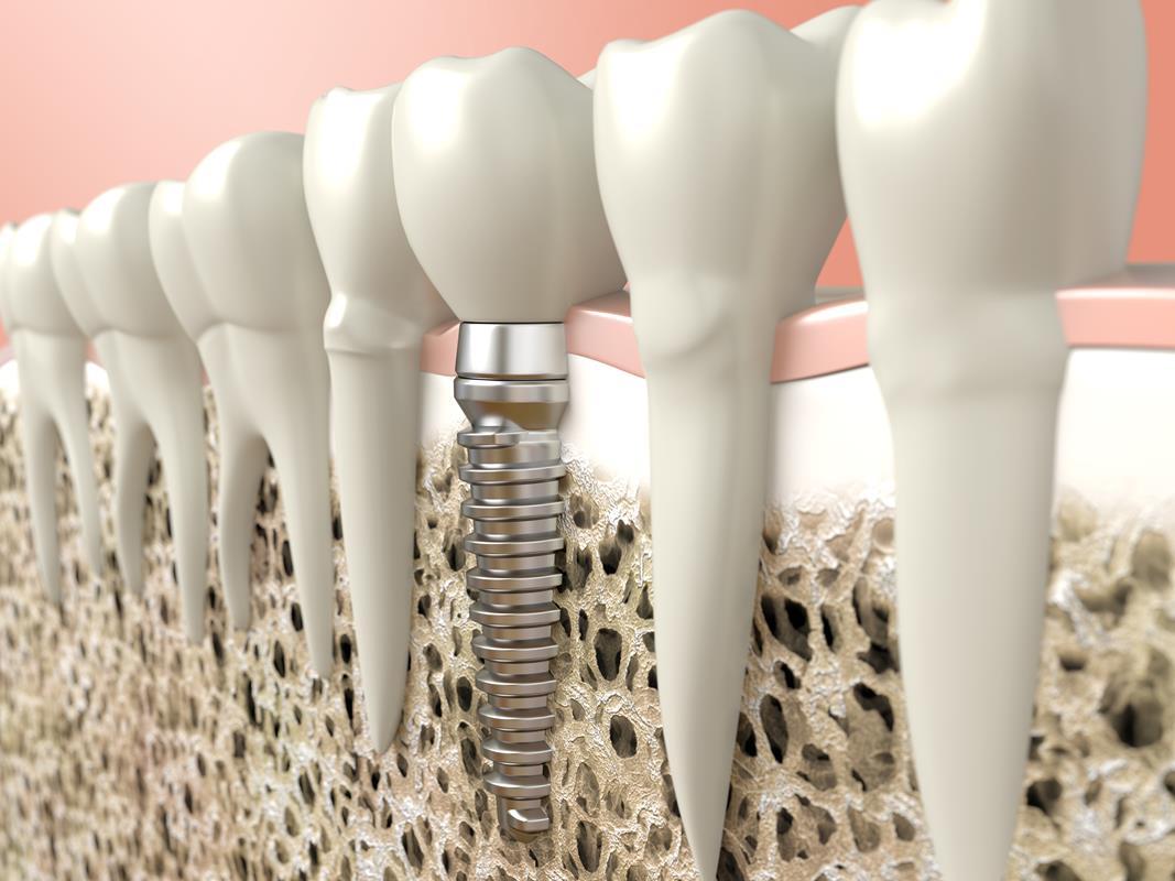 Dental Implants  Monroe, MI