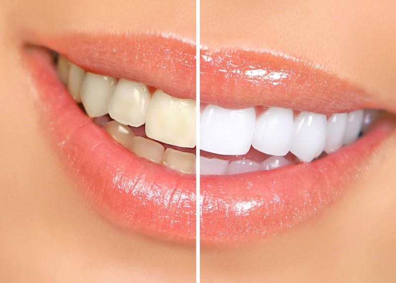 Teeth Whitening  Monroe, MI